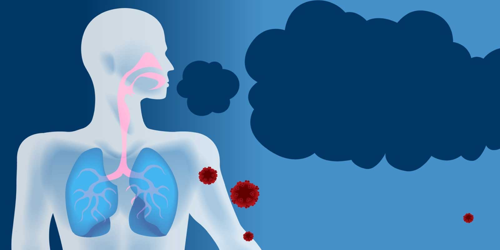 """Lucanix"" rising hope for advanced Non-Small Cell Lung Cancer"
